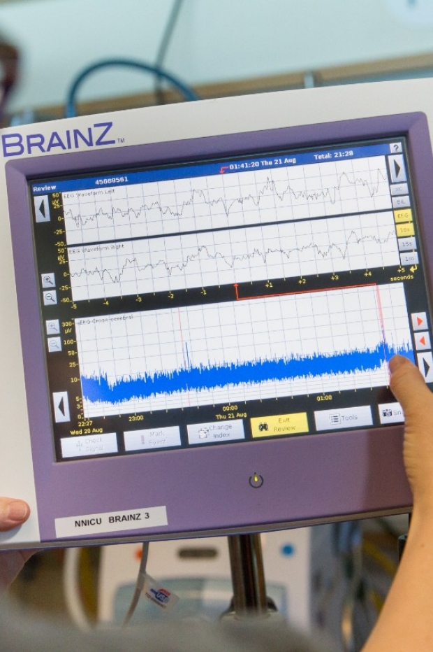 Unseen doctor examining various kinds of brain waves on a brain monitor