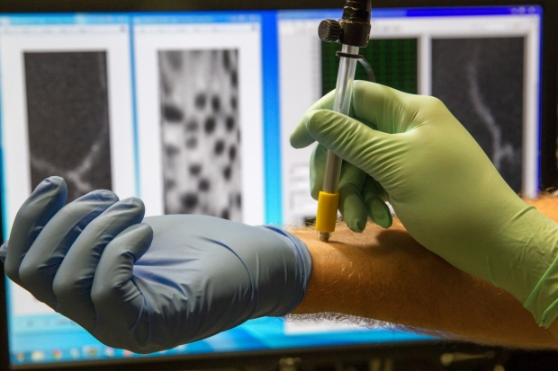 Hand wearing a green glove uses a pen sized optical imaging device (like a handheld microscope) to examine the wrist of someone wearing a blue glove.